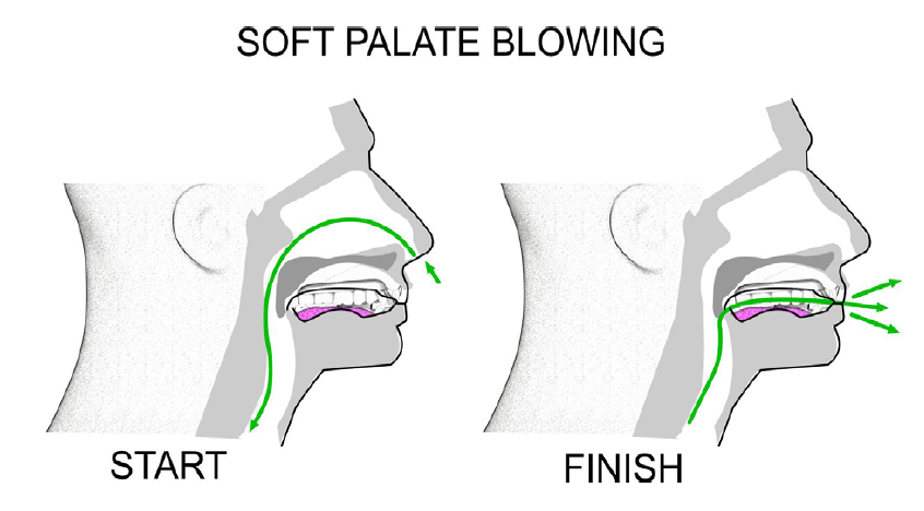 w_softpalateblowing